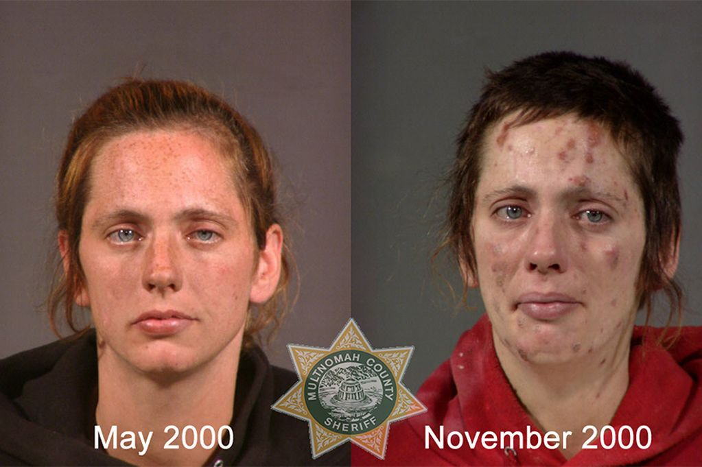Faces of Meth: Shocking mugshot photos
